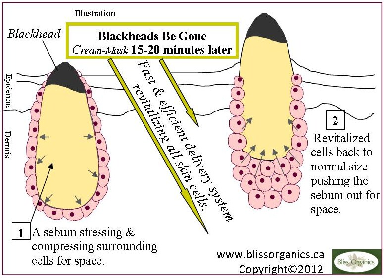 3 Blackheads Bygone Illustration